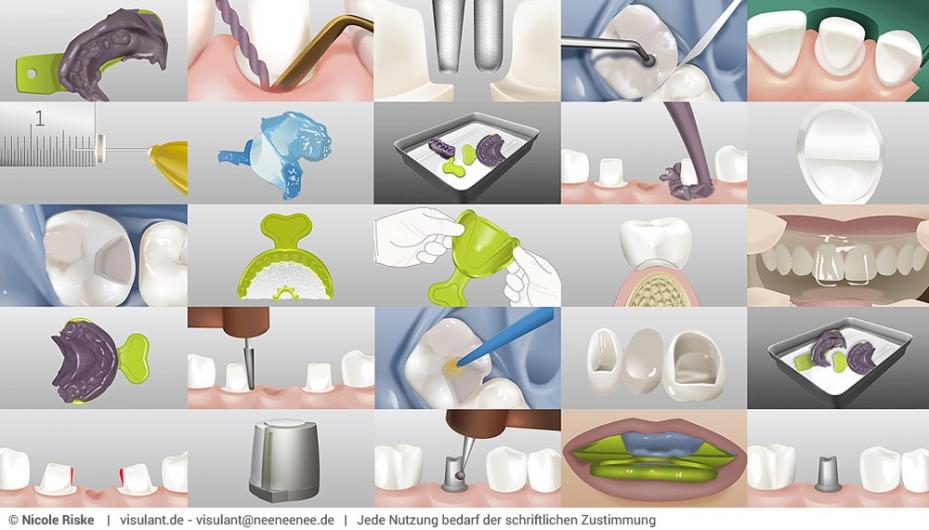 zahnmedizinische Illustrationen - Überblick